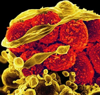 MRSA is extremely contagious and exhibits strong resistance to antibiotics and traditional disinfection methods.